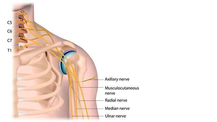 Brachial plexus injury claims